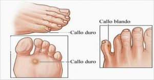 Calos dos pés