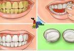 Clareie seus dentes