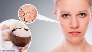 Ressecamento da pele