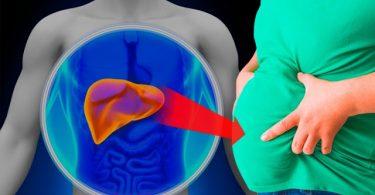 sintomas-de-problemas-no-fígado-perder-peso-e1537125509552